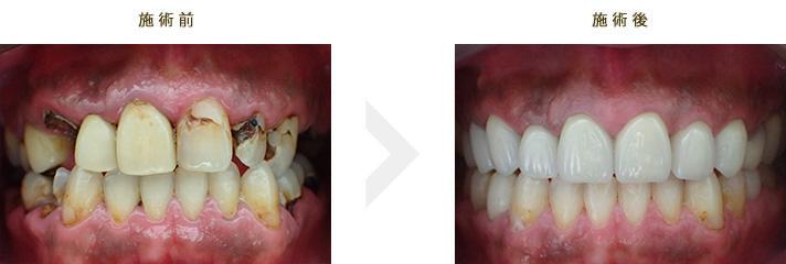 症例集 e.max インプラント ホワイトニング ハイブリッド冠